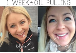 benefits-of-oil-pulling-white-teeth