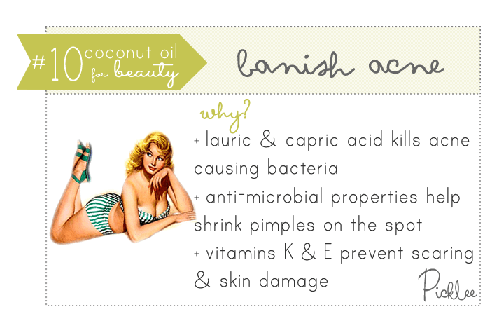 coconut oil uses-cure acne